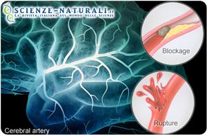 Apnee notturne e forame ovale: un binomio che causa l'ictus