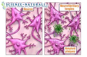 """Scoperte le """"pinzette"""" per curare l'Alzheimer"""