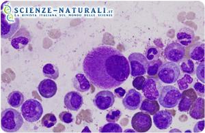 """Lucrare sui tumori altrui: una vera e propria """"mania"""""""