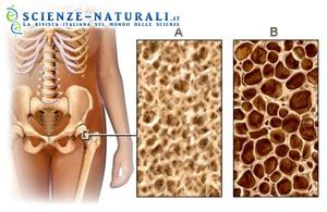 Osteoporosi: le giovani fumatrici le più a rischio