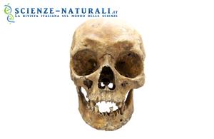 Colore di occhi e capelli dei nostri antenati. Basta un esame del DNA dei resti!