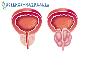 Disturbi della prostata: impariamo a non sottovalutarli