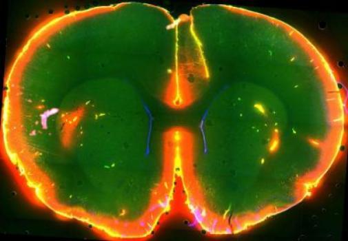 Il cervello può eliminare le tossine durante il sonno