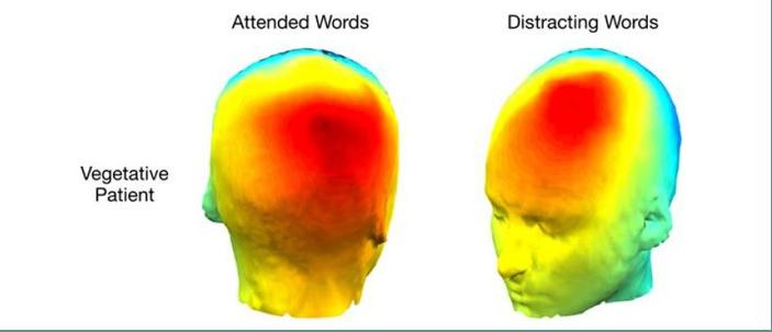 I pazienti in stato vegetativo riescono a prestare attenzione