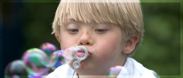 Sindrome di Down: l'interazione con la fluoxetina potrebbe correggerne le alterazioni