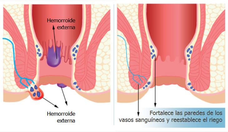 Emorroidi: rimedi e prevenzione con metodi naturali