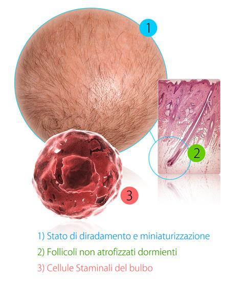 Cura dell'alopecia femminile:  partire dalle cause per arrivare alle soluzioni più adatte